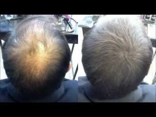 Avant / aprés Hair30